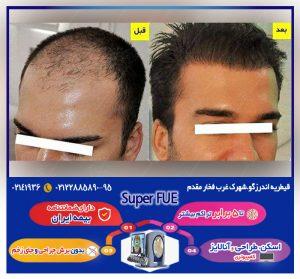 کاشت مو در کلینیک رویان مو